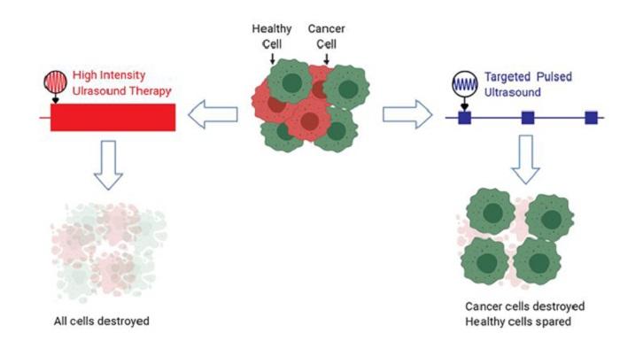 Yeni Ultrason Tedavisi Kanser Hücrelerini Öldürüyor