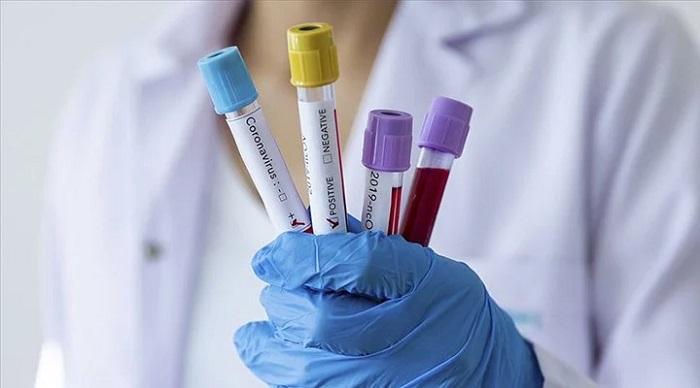 Nobel Ödüllü Virologdan Ortalığı Karıştıracak İddia: Koronavirüs Laboratuvarda Üretildi