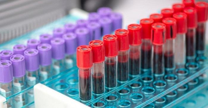 Yeni Kan Testi Kanseri Belirtilerinden 4 Yıl Önce Tespit Etti