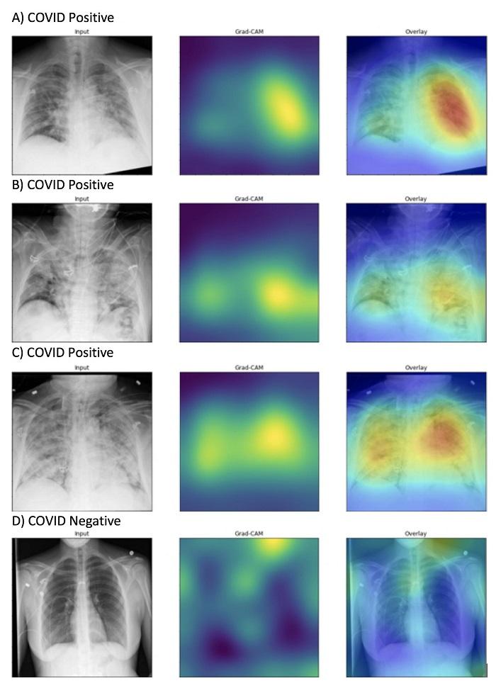 Yapay Zeka, Göğüs Röntgenlerinde COVID-19'u Uzmanlardan 10 Kat Daha Hızlı Tespit Etti
