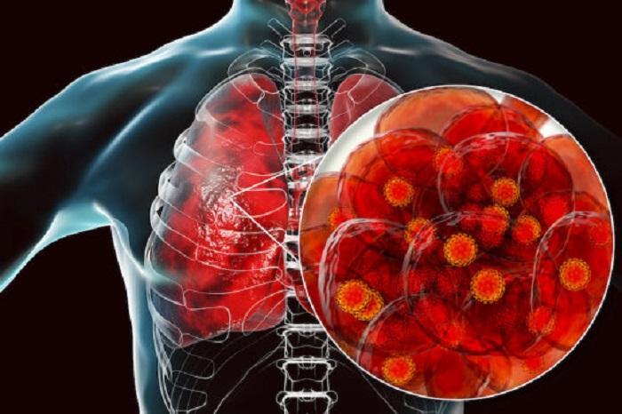 Araştırmacılar SARS-CoV-2 Virüsünün Nasıl Hızlıca Kaçarak İnsan Akciğer Hücrelerine Zarar Verdiğini Belirledi