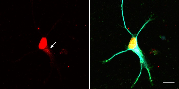 Nöronlarda Yeni Sinyal Yolağı Keşfedildi!