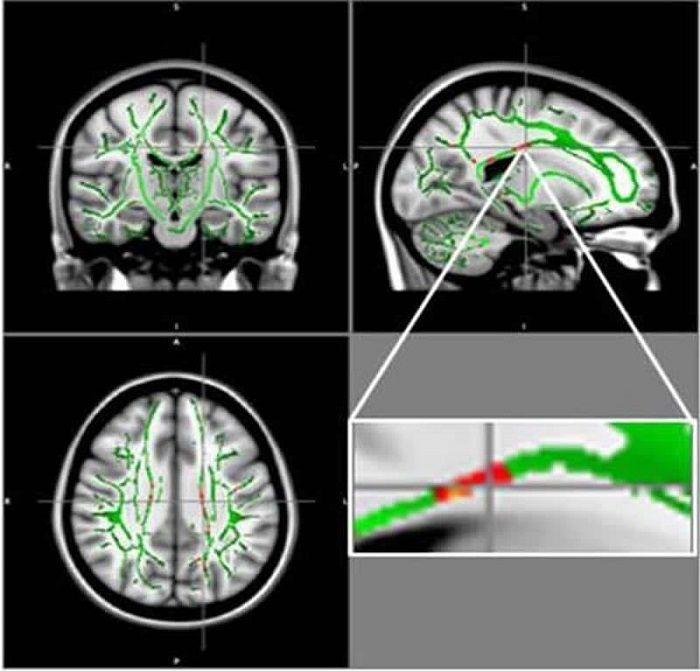 Obez Gençlerde MRI Beyin Hasarını Ortaya Çıkardı